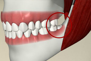 Wisdom Teeth Extraction Scarborough